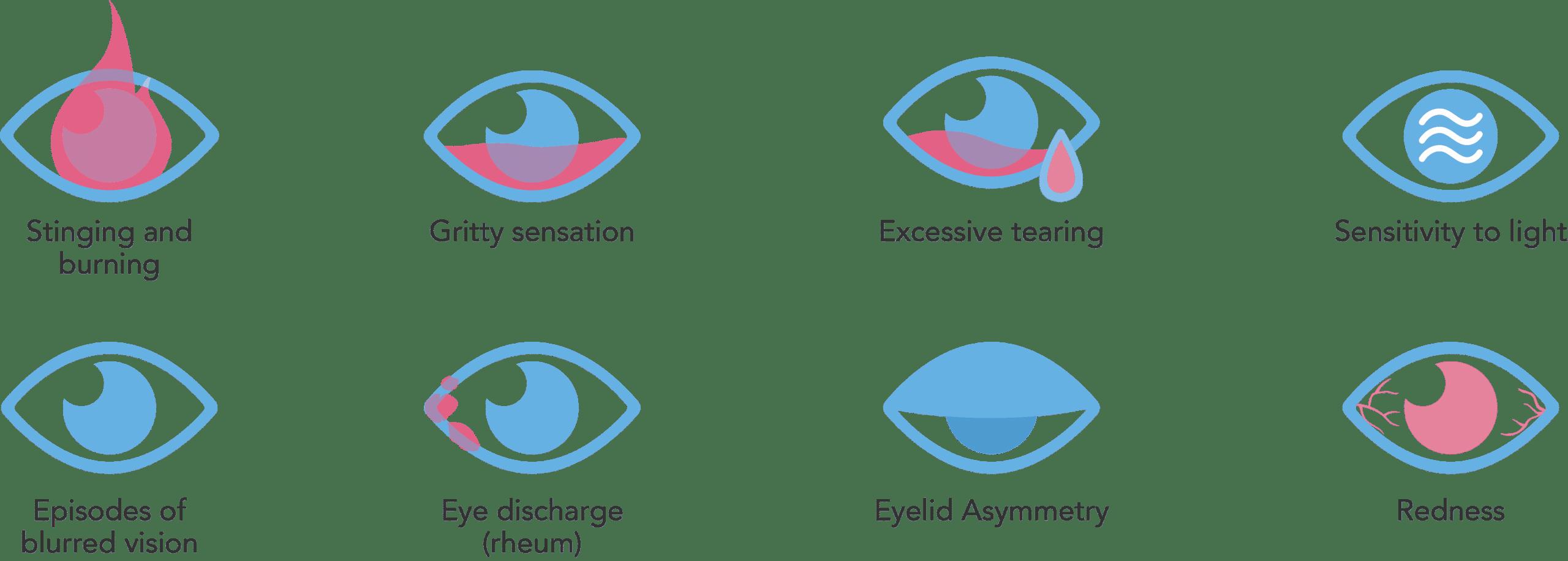Surgery_Web_ENG_Dry eye symptom