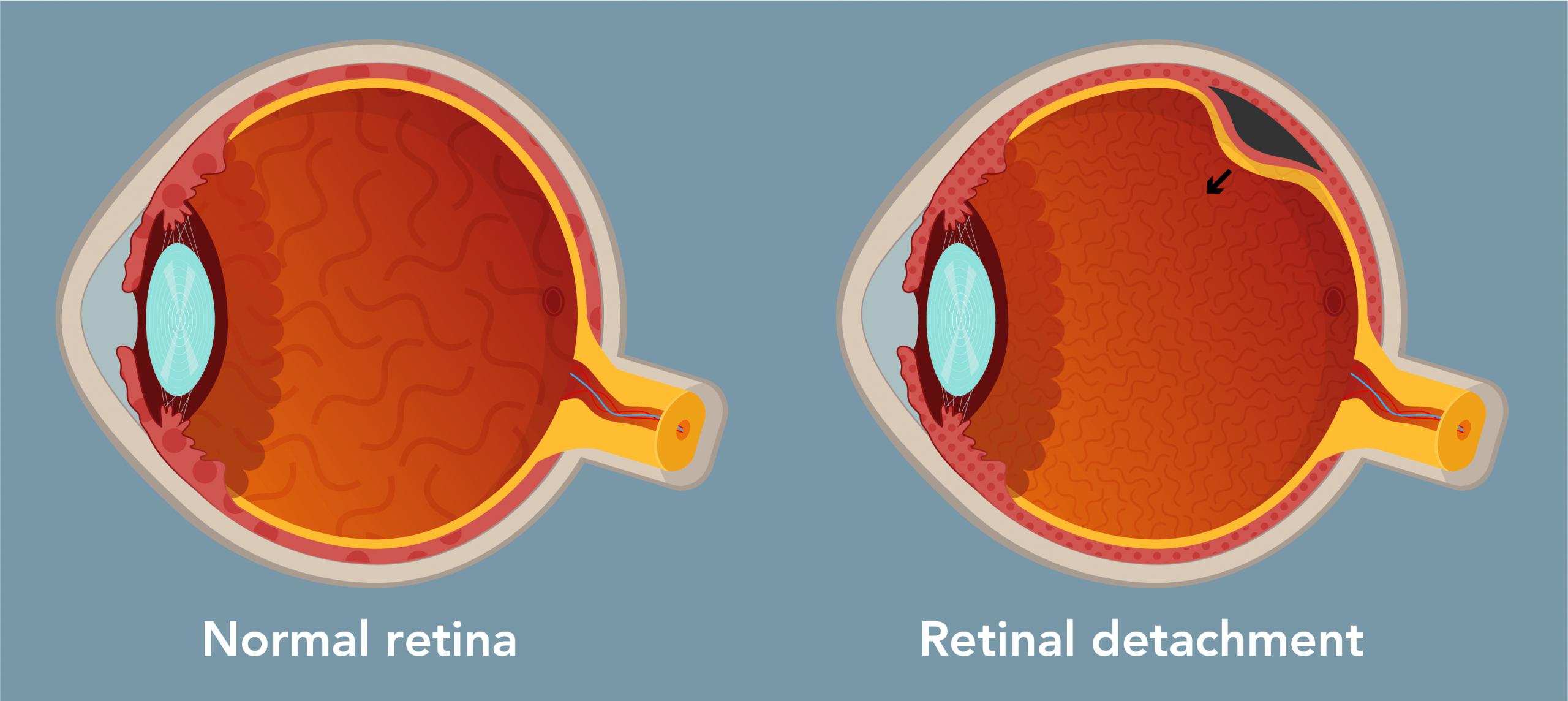 Surgery_Web_ENG_Retinal detachment