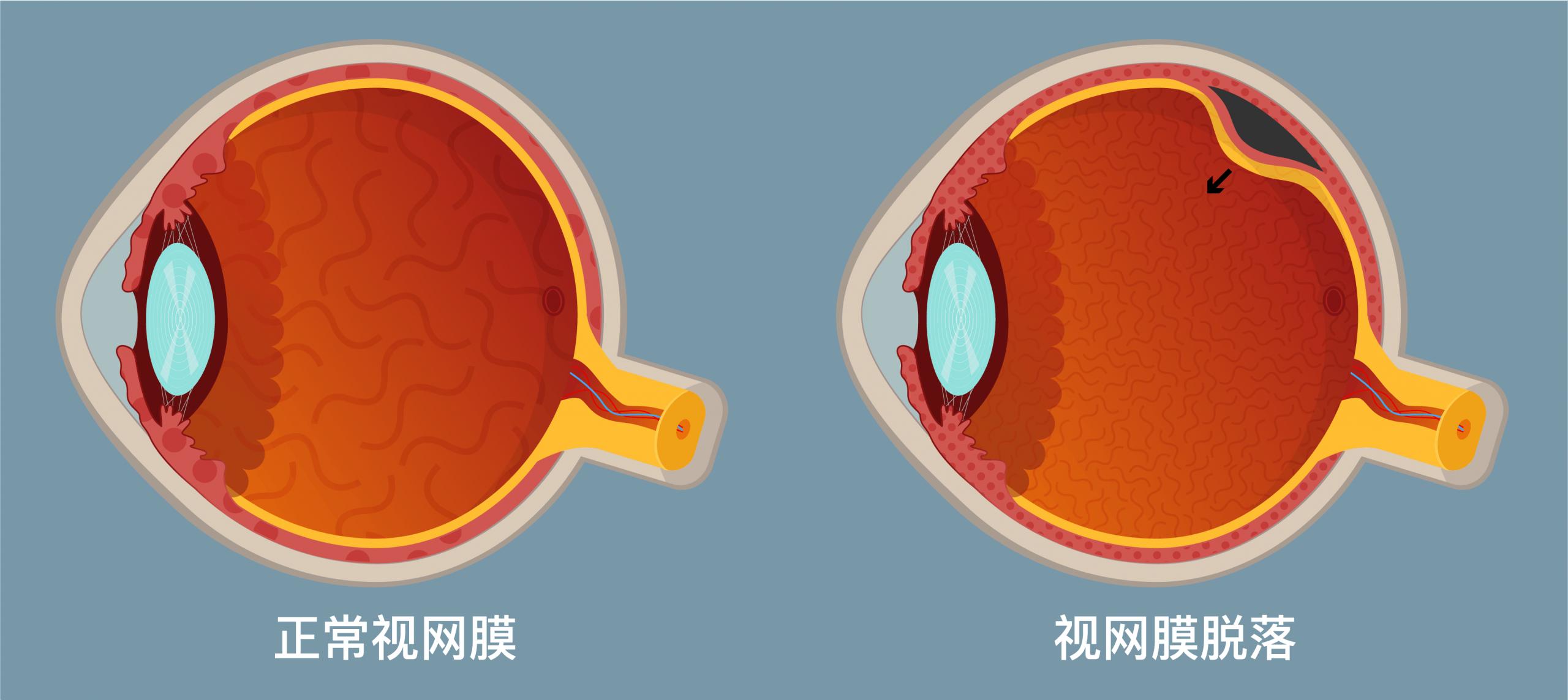 Surgery_Web_SC_Retinal detachment